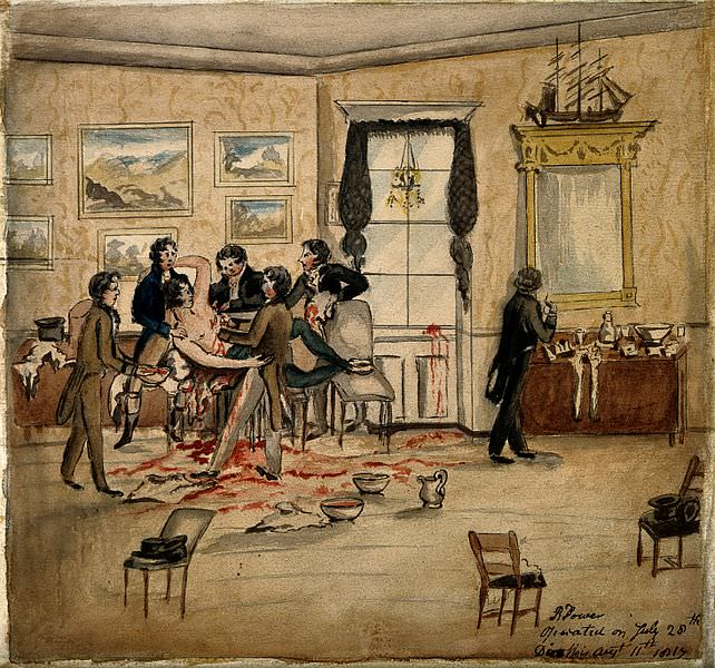 Cancer Treatment in the 19th Century: A surgical operation to remove a malignant tumour from a man's left breast and armpit in a Dublin drawing room, 1817. Source: Wellcome Images https://wellcomeimages.org/