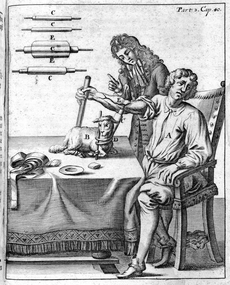 An early blood transfusion from lamb to man, by Matthäus Gottfried Purmann. Source: Wellcome Collection