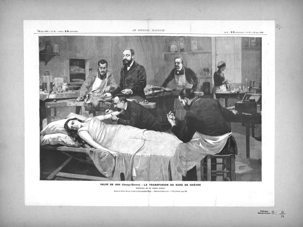 Transfusion of goat's blood into a woman, by Jules Adler, 1892 Source: Collection BIU Santé Médicine